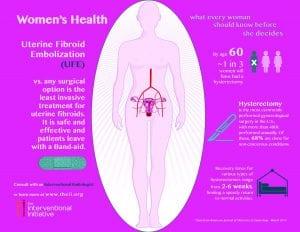 UFE UAE uterine fibroid doctor socal los angeles