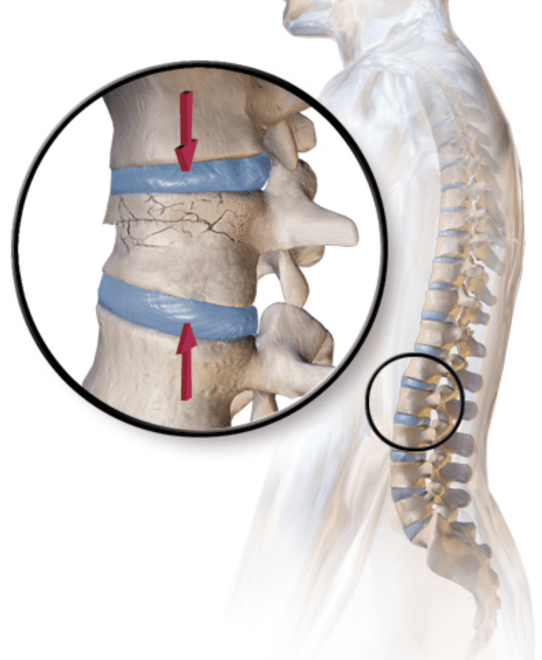 Back Pain Kyphoplasty Fracture Los Angeles San Diego
