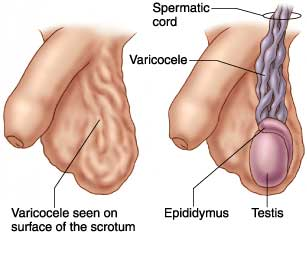 Varicocele Embolization Los Angeles San Diego Orange County California Doctor