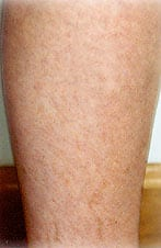 Spider Vein Sclerotherapy Laser Los Angeles Doctor San Diego