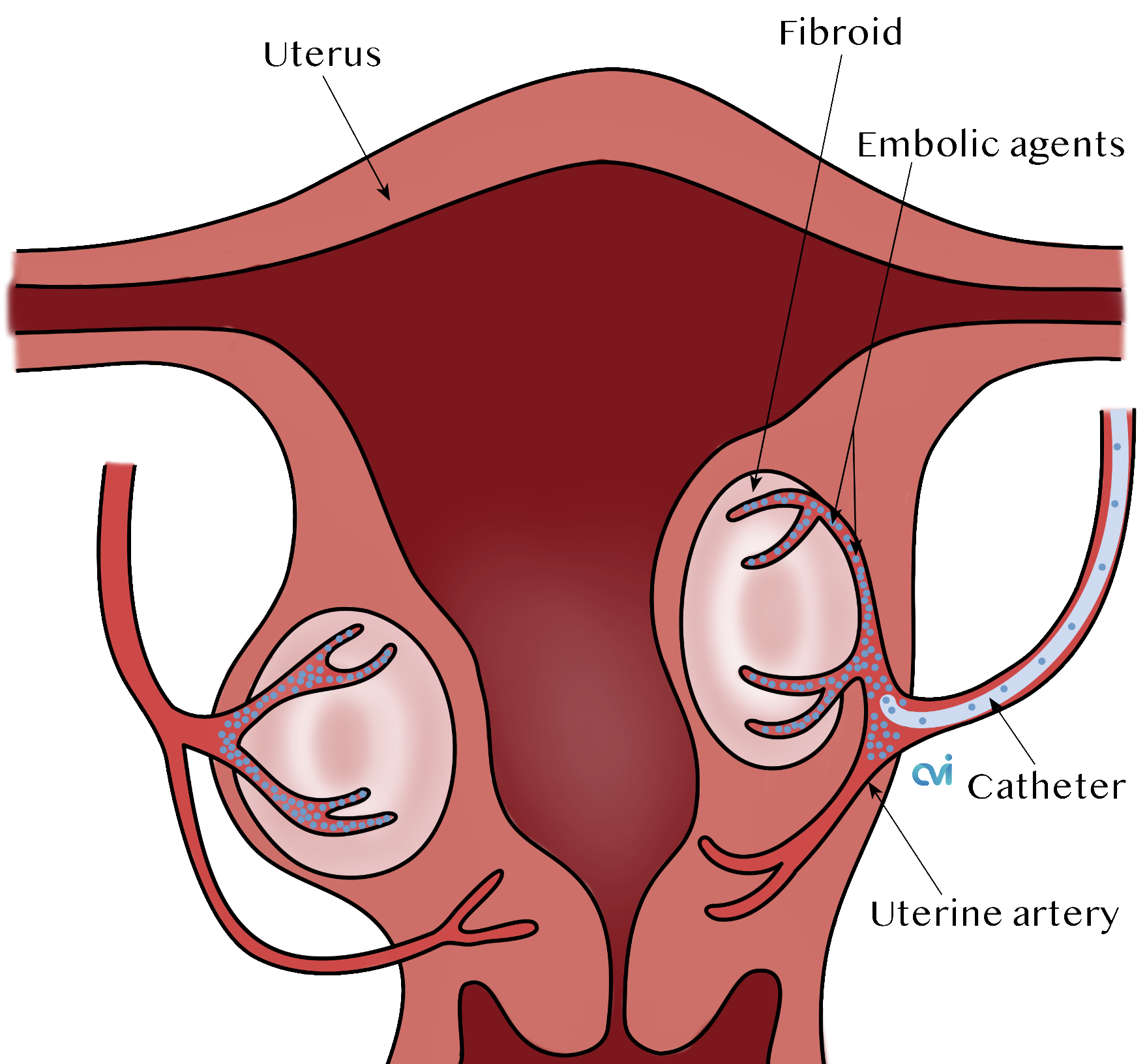 los angeles fibroid specialist embolization beads
