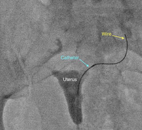 fallopian tube blockage recanalization los angeles california
