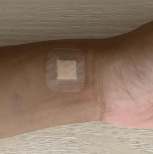 Fibroid Embolization Band-Aid