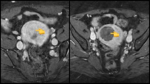 Pre UFE (left) and post UFE (right) MRI. The black area is the dying fibroid devoid of blood supply after uterine artery embolization.