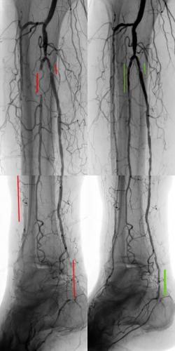 PVD Leg Wound